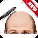 Hair Loss/Fall Treatment by Parity Zone