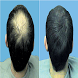 Home Remedies for Hair Loss by SherLuck