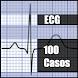 ECG 100 casos prácticos by FreeTheDoctor