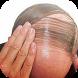Hair Fall Men by MoSoRinApp