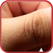 Treatment For Skin Allergy by DrWo Apps