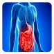 Crohn's disease by Health Care Tips