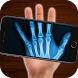 X-Ray scanning bones (simulation) by MaxZieli
