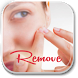 Tips To Remove Pimples by dierre09