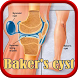 Baker's cyst Disease by Droid Clinic