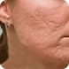 Acne Scar Removal Home Remedy by StatesApps