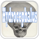 Hydrocephalus Disease by Droid Clinic
