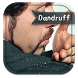 How To Get Rid Of Dandruff by PerryNelsonfvb